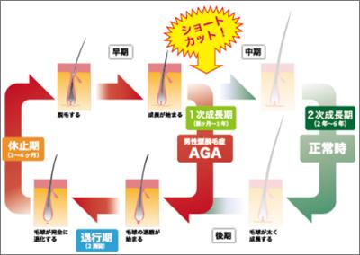 大阪市,緑橋,メンズ専門サロン,メンズパーマ,ツイスト,スパイラル,クセ毛,